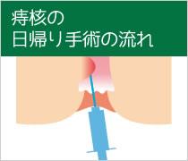 痔核の日帰り手術の流れ