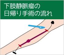 下肢静脈瘤の日帰り手術の流れ